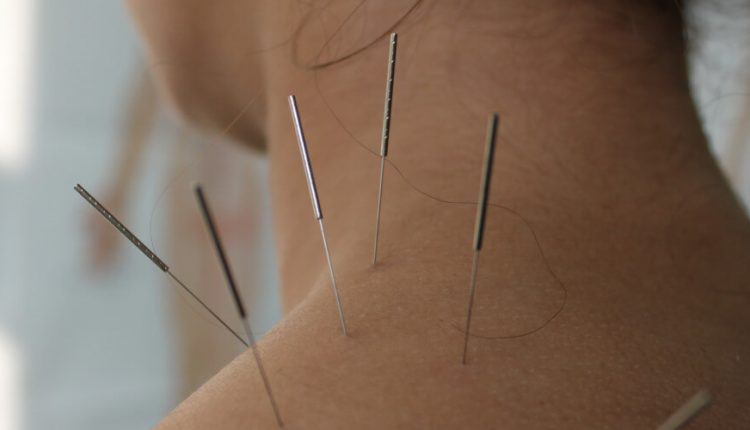 Getting a trusted place for Acupressure treatment is no more a worry